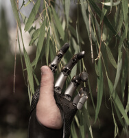 A Human Hand With 4 Prosthetic Fingers and Willow