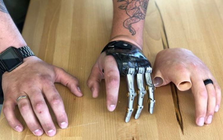 A Silicone Prosthetic Hand Next to Three Pd's