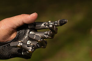 Human Hand With Prosthetic Fingers