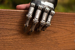 Human Hand With 4 Prosthetic Fingers