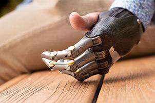 Human Hand With 4 Prosthetic Fingers Is Lying On